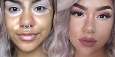 Beauty-Star trotz Pigmentstörung