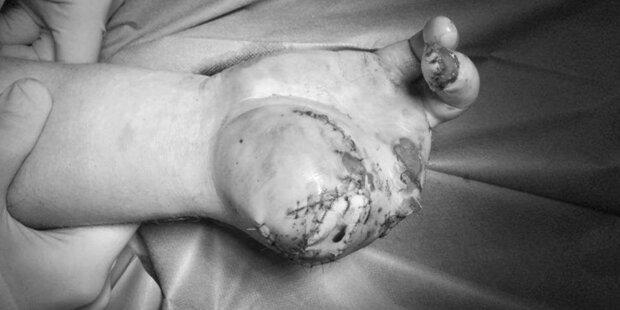 Warnung: Klinik schockt mit zerfetzter Böller-Hand