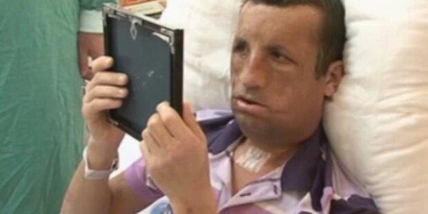 Erster Blick nach Gesichtstransplantation