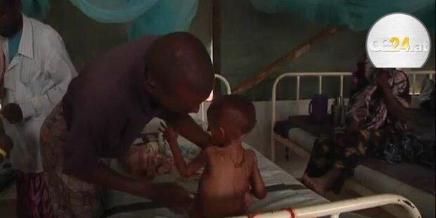 Somalia: Kinder leiden Hunger, Land an Dürre