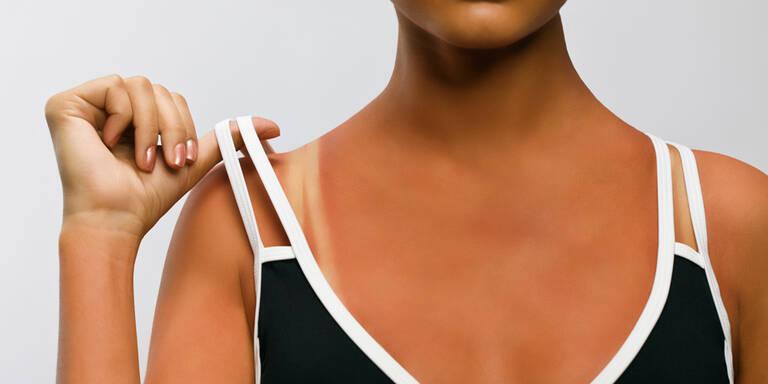 Das hilft sofort bei Sonnenbrand
