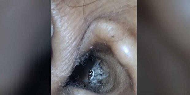 Frau hatte ständig Kopfweh – dann fand der Arzt eine Spinne in ihrem Ohr