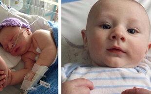Kein Herzschlag bei der Geburt: So tapfer kämpft sich Baby Theo ins Leben