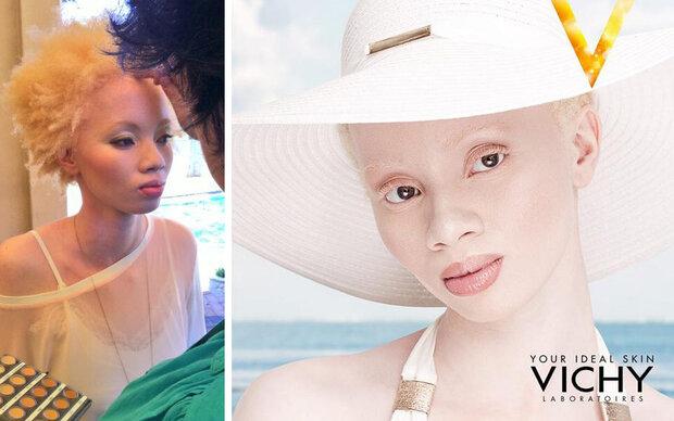 Albino-Model kämpft gegen Vorurteile