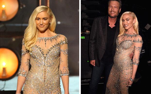 Gwen Stefani schockt mit Botox-Mimik