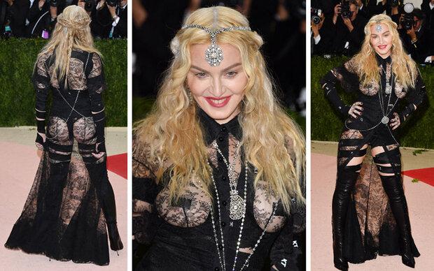 Was ist nur mit Madonna passiert?