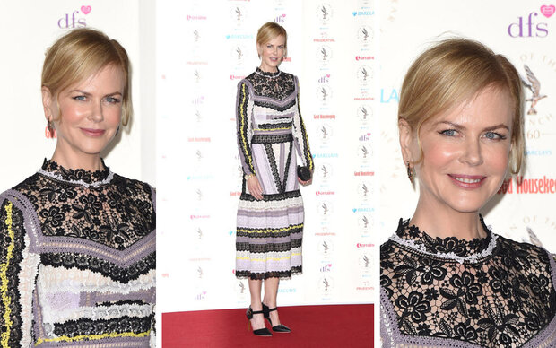 Nicole Kidman, wo sind deine Haare hin?