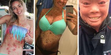 Diese mutigen Frauen stehen zu ihren Hautproblemen
