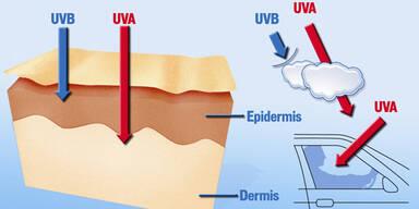 Wie UV-Strahlen zu Hautschäden führen