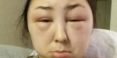 Allergische Reaktion nach Haarefärben.
