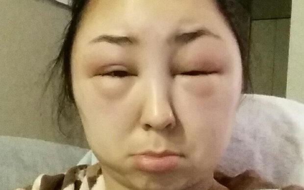 haare färben allergie