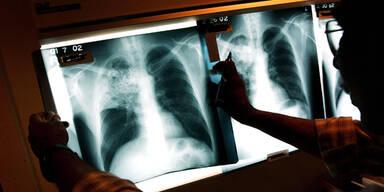 Schüler in NÖ an Tuberkulose erkrankt