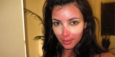 3 Tipps um trotz Sonnenbrand gut auszusehen