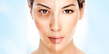Lebensstil ist wichtiger für schöne Haut als Kosmetik