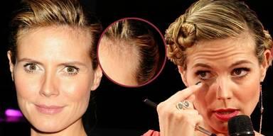 Heidi Klum gehen die Haare aus