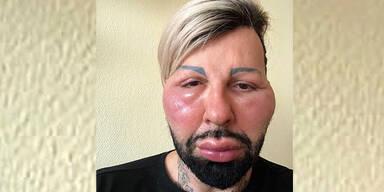 Glööckler: Allergie wegen Beauty-OP?