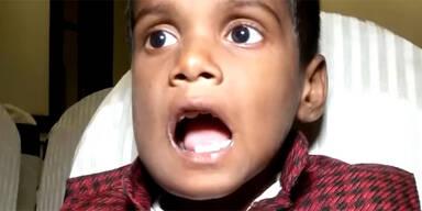 Diesem Buben (7) wurden 526 Zähne entfernt