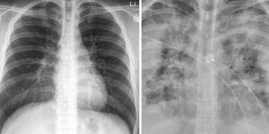Fotos zeigen Corona-Lungen von Geimpften und Ungeimpften