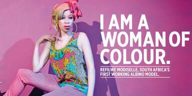 Das Albino-Model kämpft gegen Vorurteile