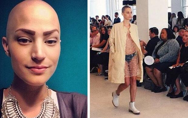 Model trotzt Krebs auf dem Laufsteg