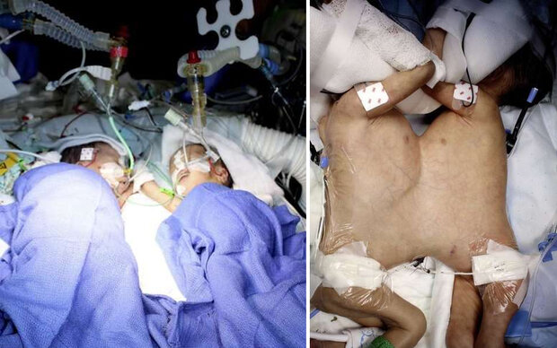 Siamesische Zwillinge acht Tage nach Geburt getrennt