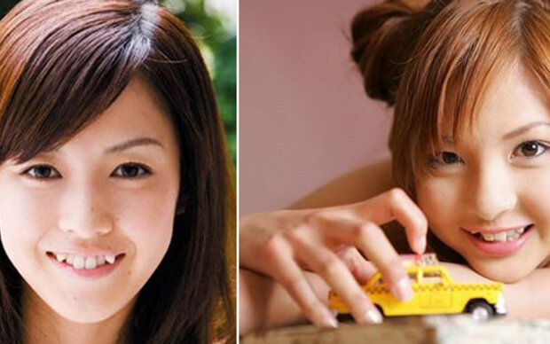 Skurriler Trend aus Japan: Schiefe Zähne