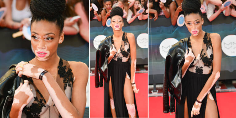 Vitiligo-Model selbstbewusst am Red Carpet