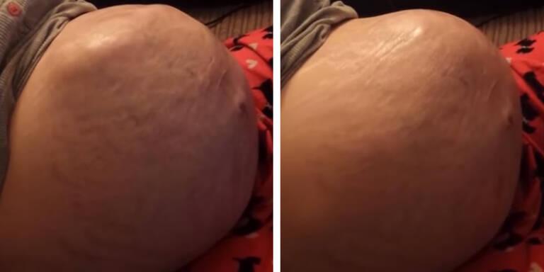 Ungeborenes turnt in Mamas Bauch