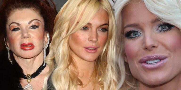 Stars im Botox-Wahn