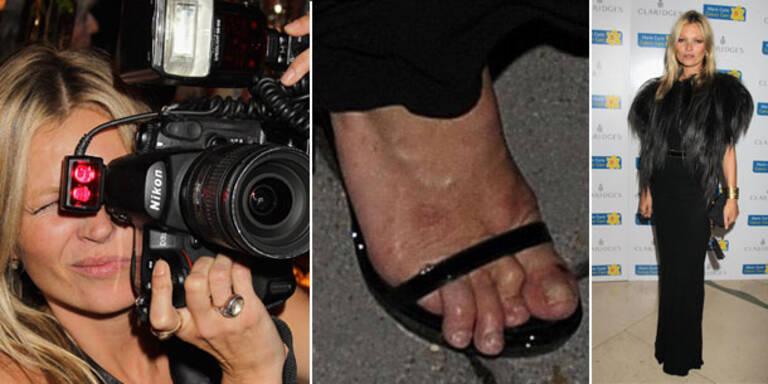Ungepflegte Füße als Trend?