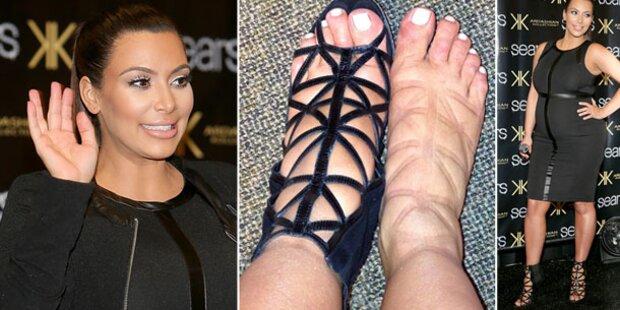 Kim Kardashian zeigt geschwollene Füße