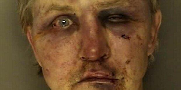Vergewaltiger von Neffen halb tot geprügelt