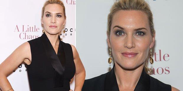 Kate Winslet in der Botox-Falle
