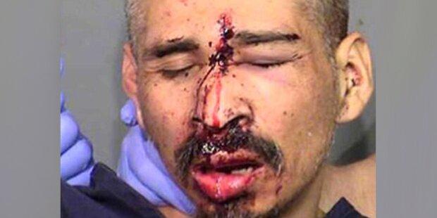 Polizeifoto zeigt Mann mit Kopfschuss
