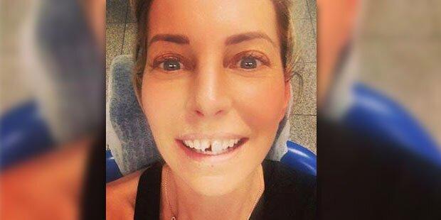 Giulia Siegel schlägt sich Zahn aus