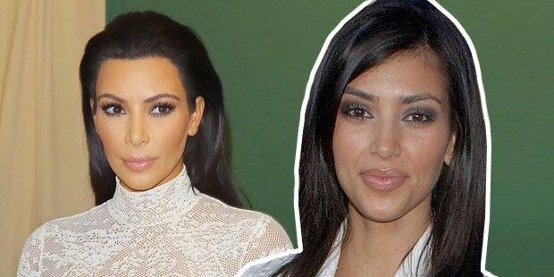 DIESEN Beauty-Eingriff bereut Kim