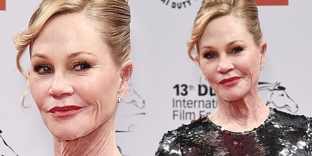 Melanie Griffith: Total verbotoxt