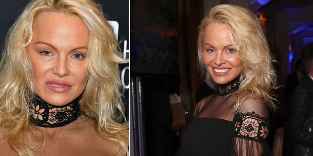 Pam Anderson: Panne beim Beauty-Doc