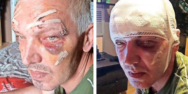 Kellner (45) in Linz mitten in der City brutal verprügelt