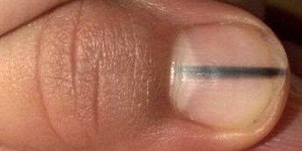So gefährlich kann ein Streifen unterm Fingernagel sein