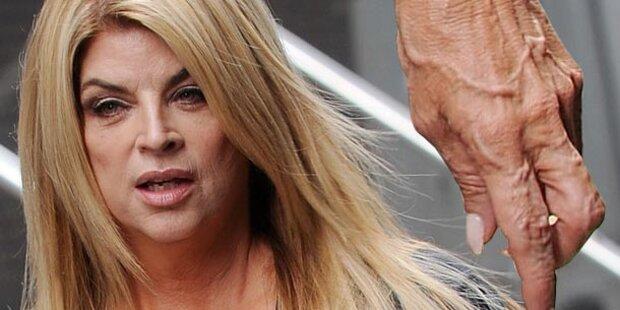 Kirstie Alley: Glattes Gesicht, faltige Hände