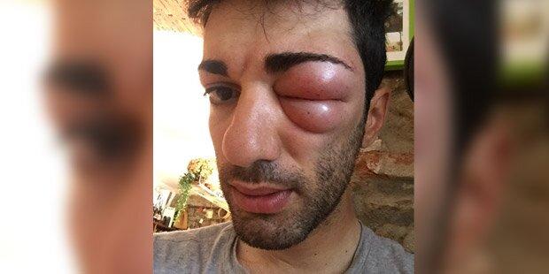 Horror-Insektenstich: Rad-Profi schwillt Auge zu