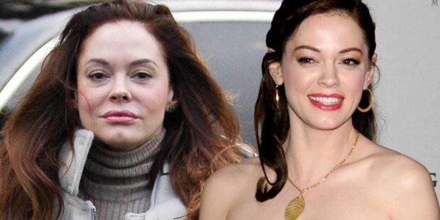 Rose McGowan: Zu viel Botox im Gesicht