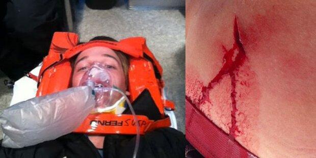 Arnies Sohn beim Skifahren verletzt