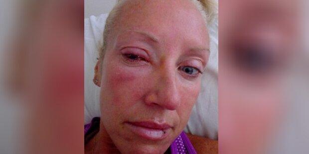 Sie ging mit Kontaktlinsen duschen – danach war sie blind