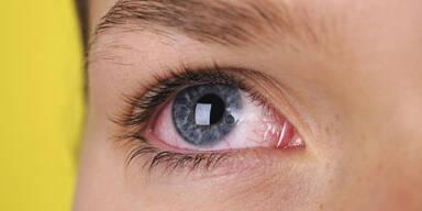 Warum Sie trockene Augen ernst nehmen sollten