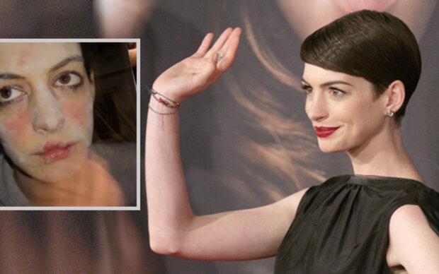 Anne Hathaways schreckliches Film-Makeover