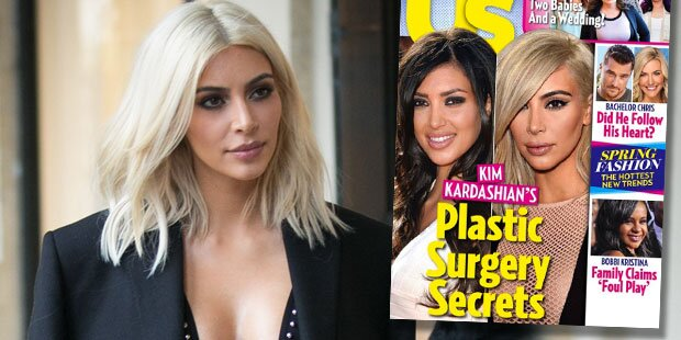 Enthüllt: Kim Kardashians OP-Geheimnisse