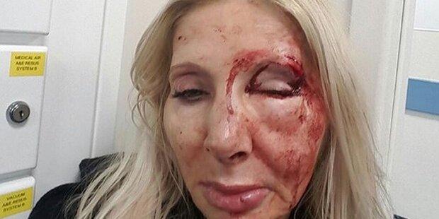 Österreicherin in Londoner U-Bahn brutal verprügelt