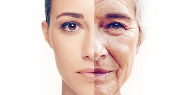 Alter aging
